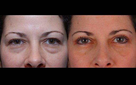 Patient presented for upper and lower eyelid surgery to reduce tired appearance, patient also opted for laser resurfacing to enhance results around the eyes.
