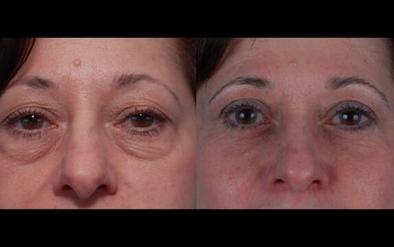 Patient presented for upper and lower eyelid surgery and opted for a laser resurfacing around the eye area to further enhance results.