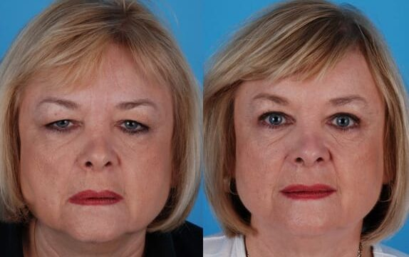 Dr. Krein performed endoscopic browlift with upper blepharoplasty, patient is pictured 9 days post-operatively.