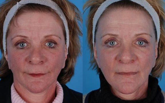 Dr. Heffelfinger performed laser resurfacing to address acne scarring, patient is pictured after only one treatment, an additional treatment is planned.